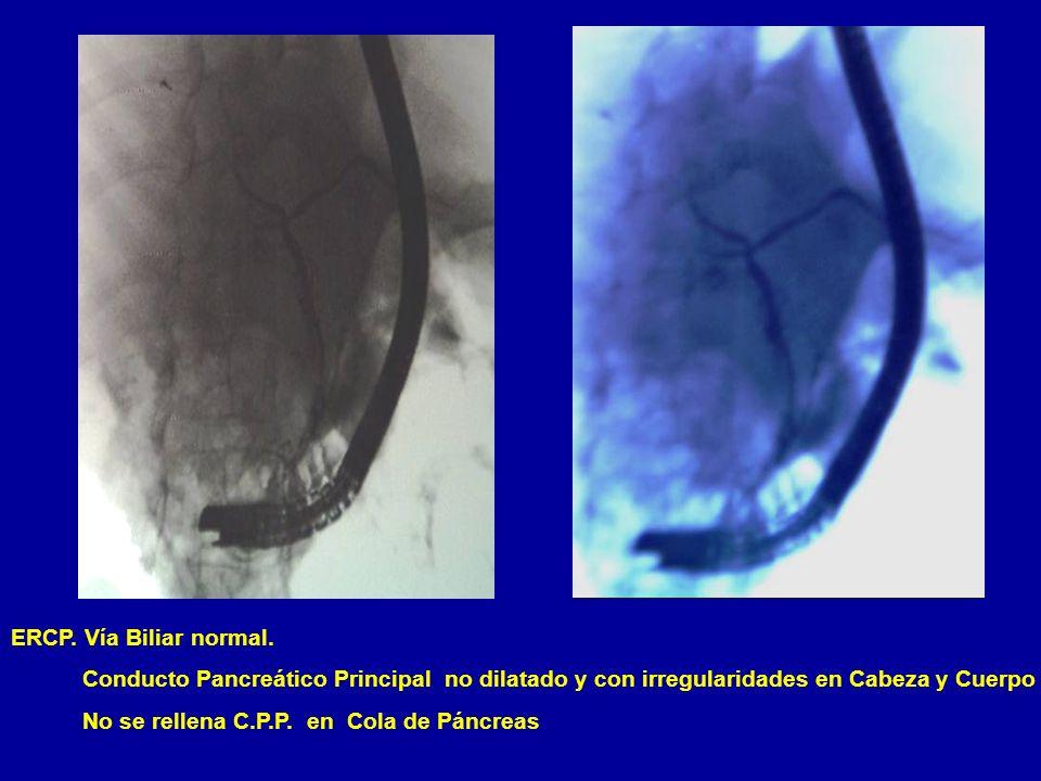 ERCP. Vía Biliar normal. Conducto Pancreático Principal no dilatado y con irregularidades en Cabeza y Cuerpo No se rellena C.P.P. en Cola de Páncreas