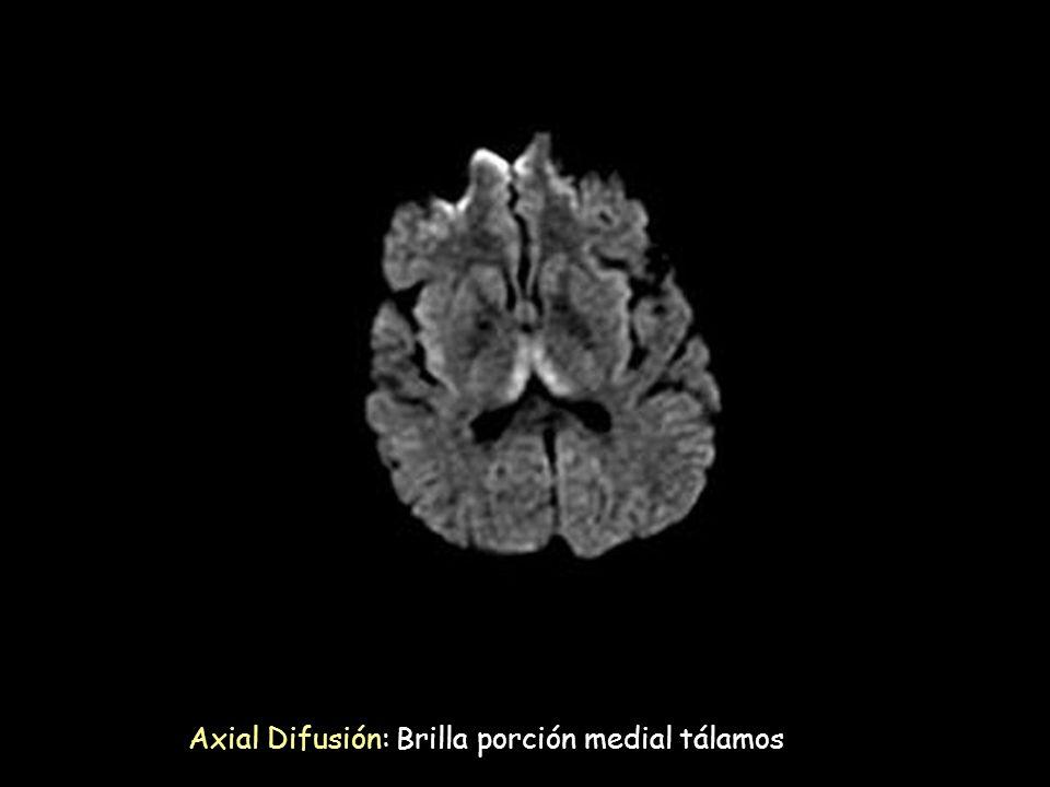 Axial Difusión: Brilla porción medial tálamos