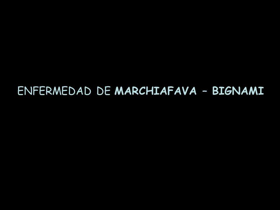 ENFERMEDAD DE MARCHIAFAVA – BIGNAMI