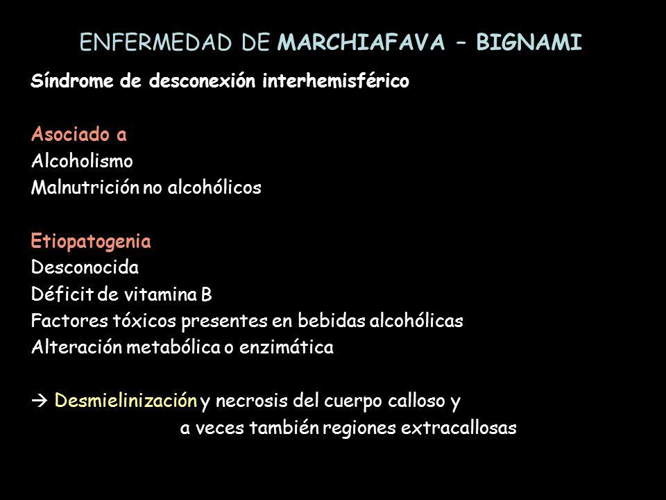 Síndrome de desconexión interhemisférico Asociado a Alcoholismo Malnutrición no alcohólicos Etiopatogenia Desconocida Déficit de vitamina B Factores t