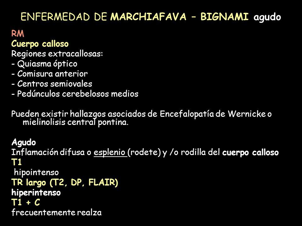 ENFERMEDAD DE MARCHIAFAVA – BIGNAMI agudo RM Cuerpo calloso Regiones extracallosas: - Quiasma óptico - Comisura anterior - Centros semiovales - Pedúnc