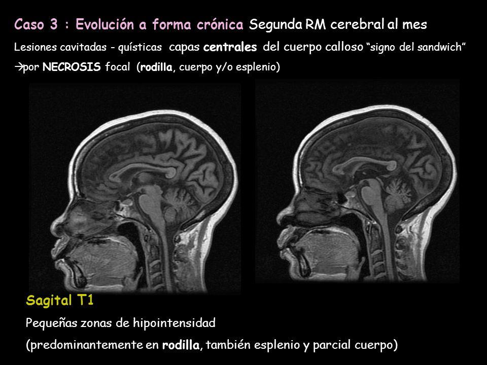 Lesiones cavitadas - quísticas capas centrales del cuerpo calloso signo del sandwich por NECROSIS focal (rodilla, cuerpo y/o esplenio) Caso 3 : Evoluc