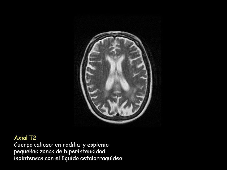 Axial T2 Cuerpo calloso: en rodilla y esplenio pequeñas zonas de hiperintensidad isointensas con el líquido cefalorraquídeo