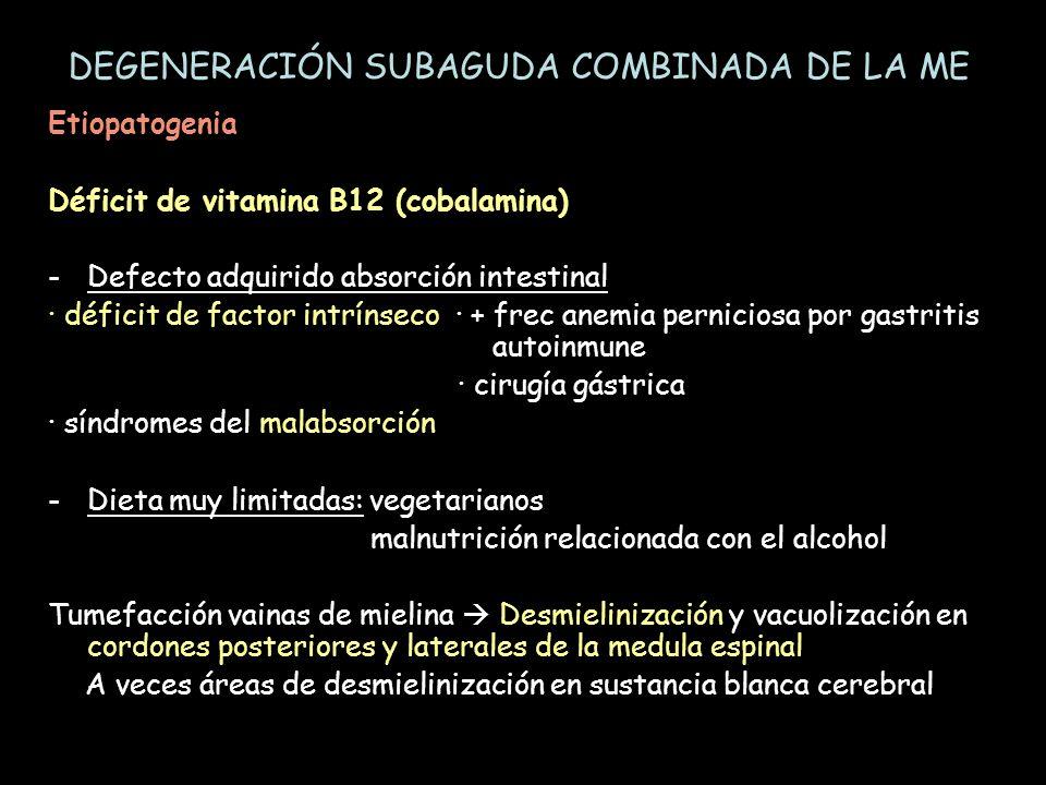Etiopatogenia Déficit de vitamina B12 (cobalamina) -Defecto adquirido absorción intestinal · déficit de factor intrínseco · + frec anemia perniciosa p