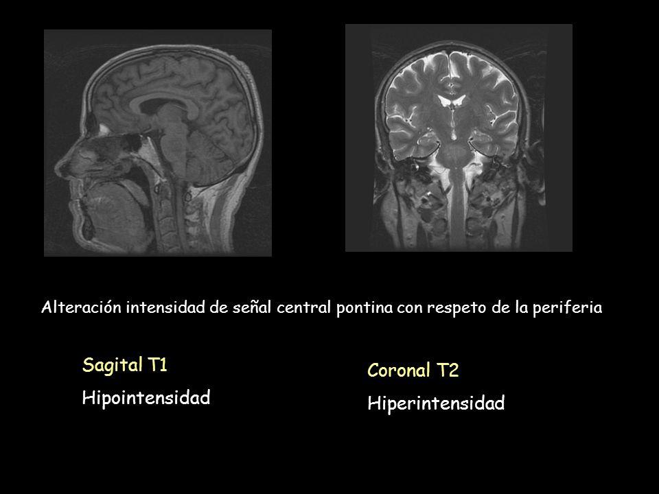 Sagital T1 Hipointensidad Coronal T2 Hiperintensidad Alteración intensidad de señal central pontina con respeto de la periferia