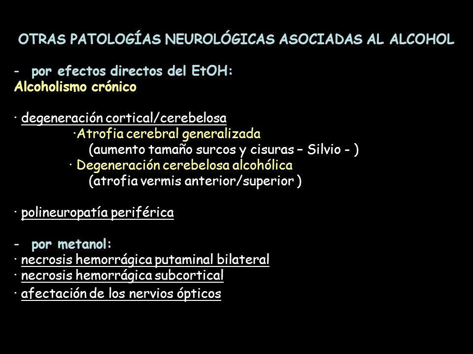 OTRAS PATOLOGÍAS NEUROLÓGICAS ASOCIADAS AL ALCOHOL -por efectos directos del EtOH: Alcoholismo crónico · degeneración cortical/cerebelosa ·Atrofia cer