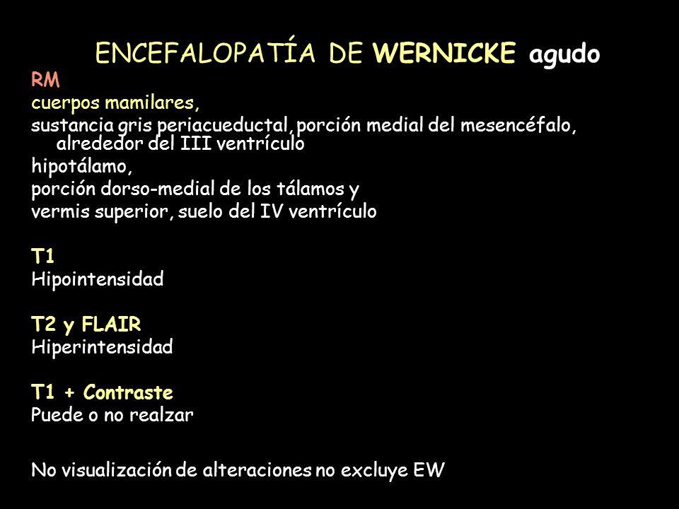 ENCEFALOPATÍA DE WERNICKE agudo RM cuerpos mamilares, sustancia gris periacueductal, porción medial del mesencéfalo, alrededor del III ventrículo hipo