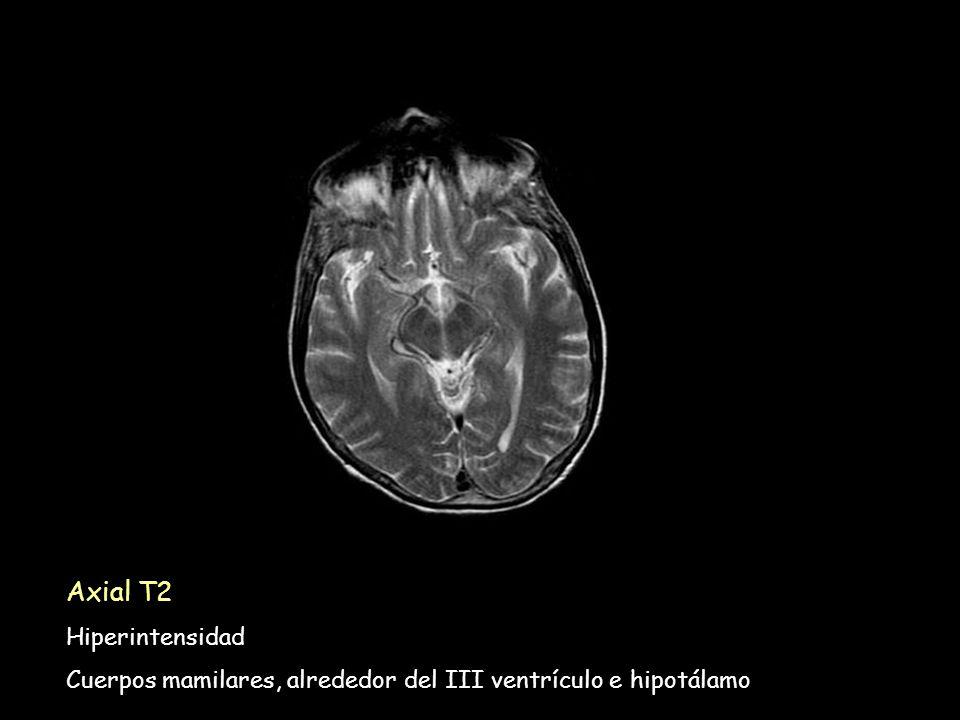 Axial T2 Hiperintensidad Cuerpos mamilares, alrededor del III ventrículo e hipotálamo