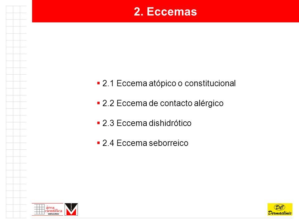 2. Eccemas 2.1 Eccema atópico o constitucional 2.2 Eccema de contacto alérgico 2.3 Eccema dishidrótico 2.4 Eccema seborreico