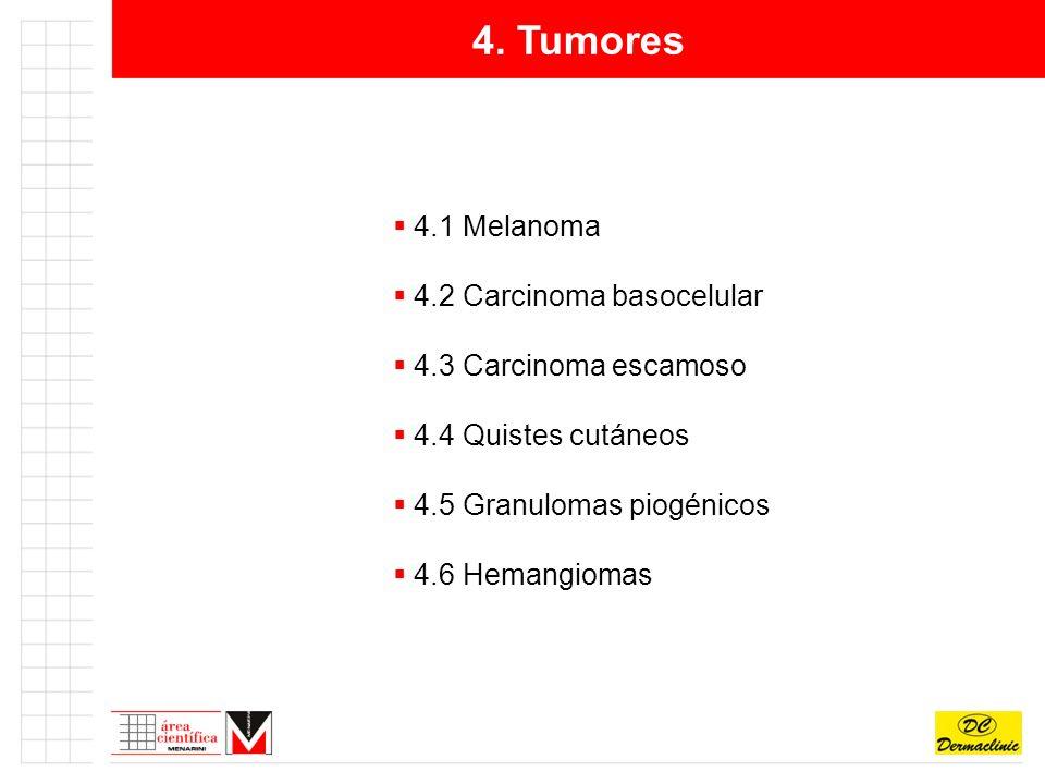 4. Tumores 4.1 Melanoma 4.2 Carcinoma basocelular 4.3 Carcinoma escamoso 4.4 Quistes cutáneos 4.5 Granulomas piogénicos 4.6 Hemangiomas