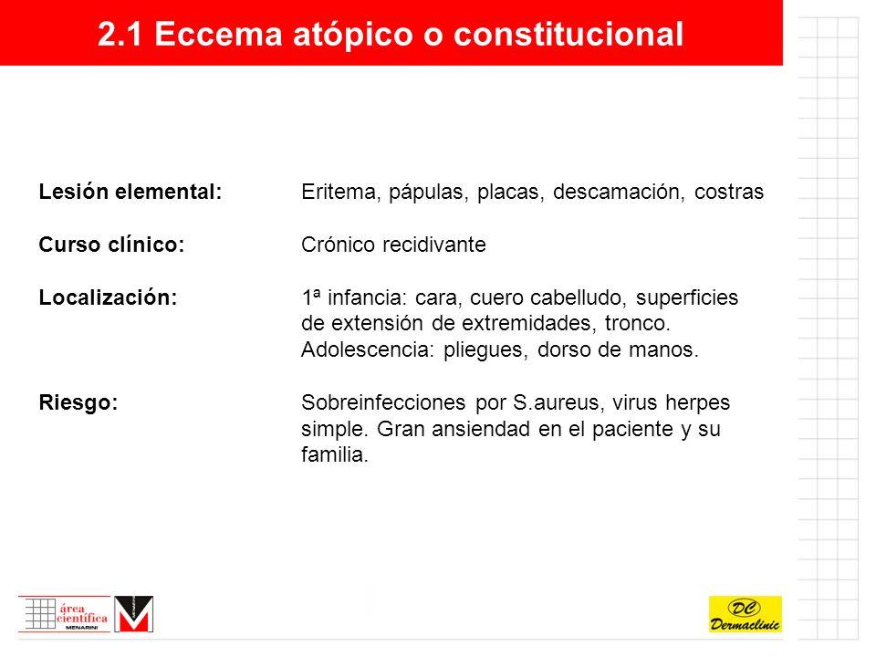 2.1 Eccema atópico o constitucional Síntomas y signos:Prurito intenso con lesiones cutáneas.