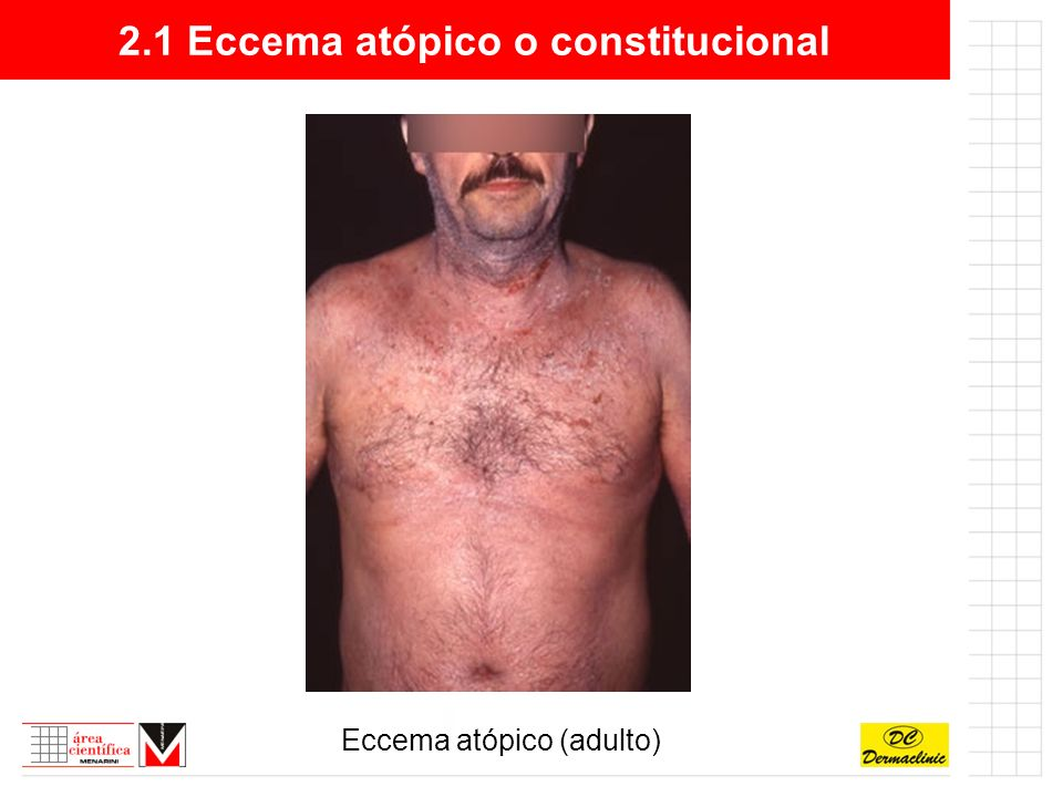 2.1 Eccema atópico o constitucional Eccema atópico (niño)