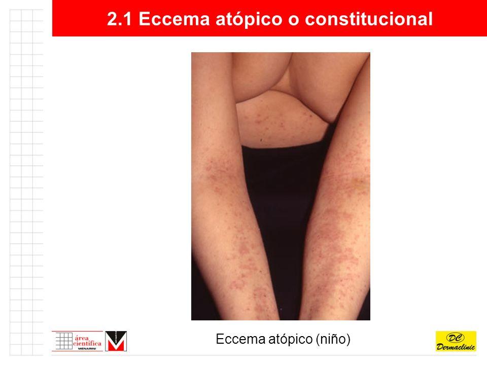 2.2 Eccema de contacto alérgico Lesión elemental:Eritema, vesícula, costra, liquenificación.
