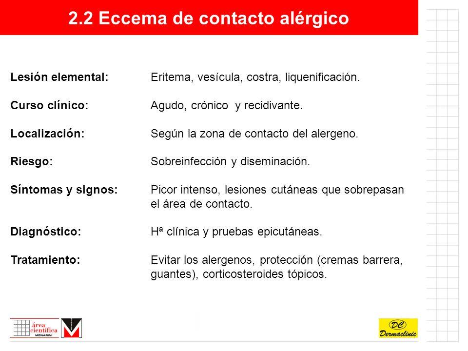 2.2 Eccema de contacto alérgico Eccema de contacto alérgico