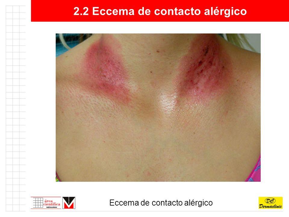 4.2 Carcinoma basocelular Carcinoma basocelular esclerodermiforme