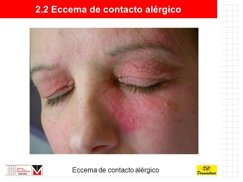 2.3 Eccema dishidrótico Lesión elemental:Vesículas, ampollas, escamas (dishidrosis laminar seca).