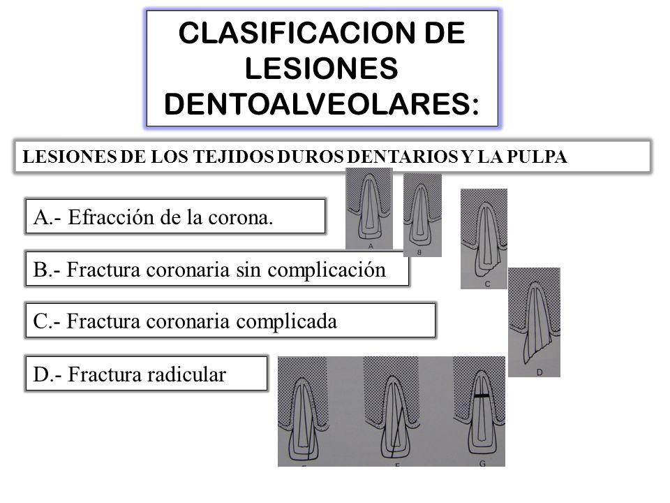 CLASIFICACION DE LESIONES DENTOALVEOLARES: LESIONES DE LOS TEJIDOS DUROS DENTARIOS Y LA PULPA A.- Efracción de la corona.