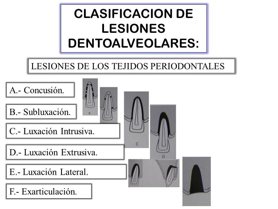 CLASIFICACION DE LESIONES DENTOALVEOLARES: LESIONES DE LOS TEJIDOS PERIODONTALES A.- Concusión.