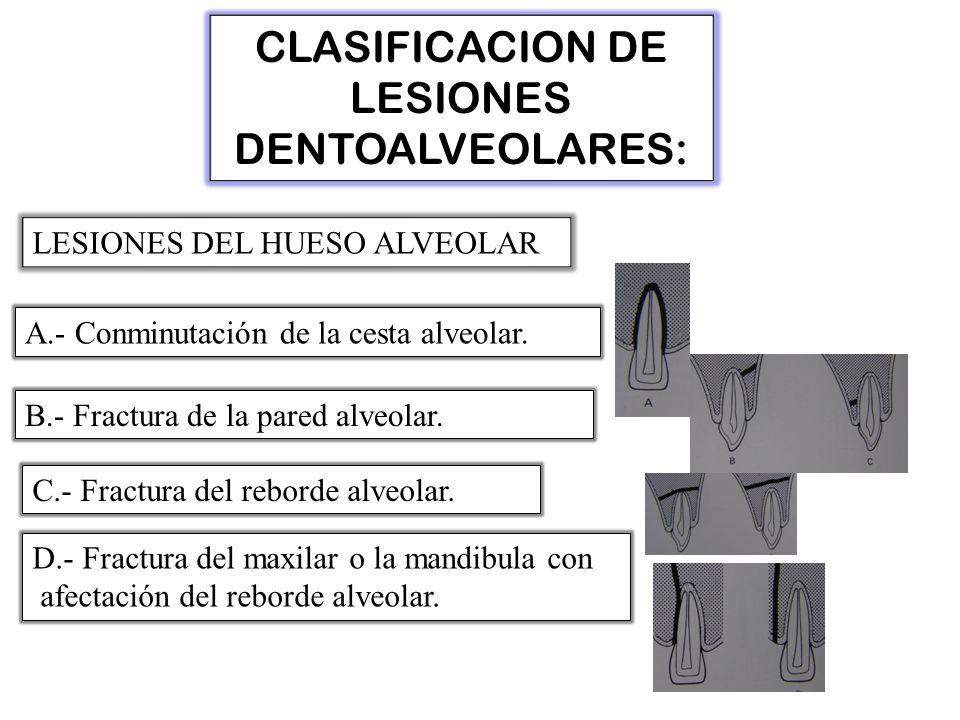 CLASIFICACION DE LESIONES DENTOALVEOLARES: LESIONES DEL HUESO ALVEOLAR A.- Conminutación de la cesta alveolar.