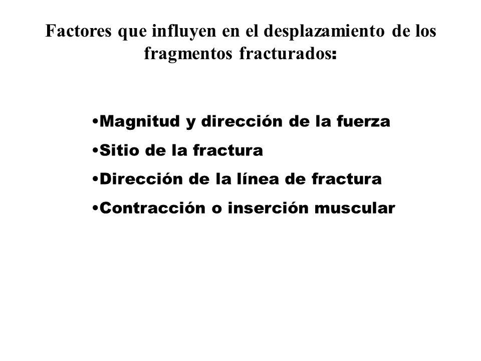 Factores que influyen en el desplazamiento de los fragmentos fracturados : Magnitud y dirección de la fuerza Sitio de la fractura Dirección de la línea de fractura Contracción o inserción muscular