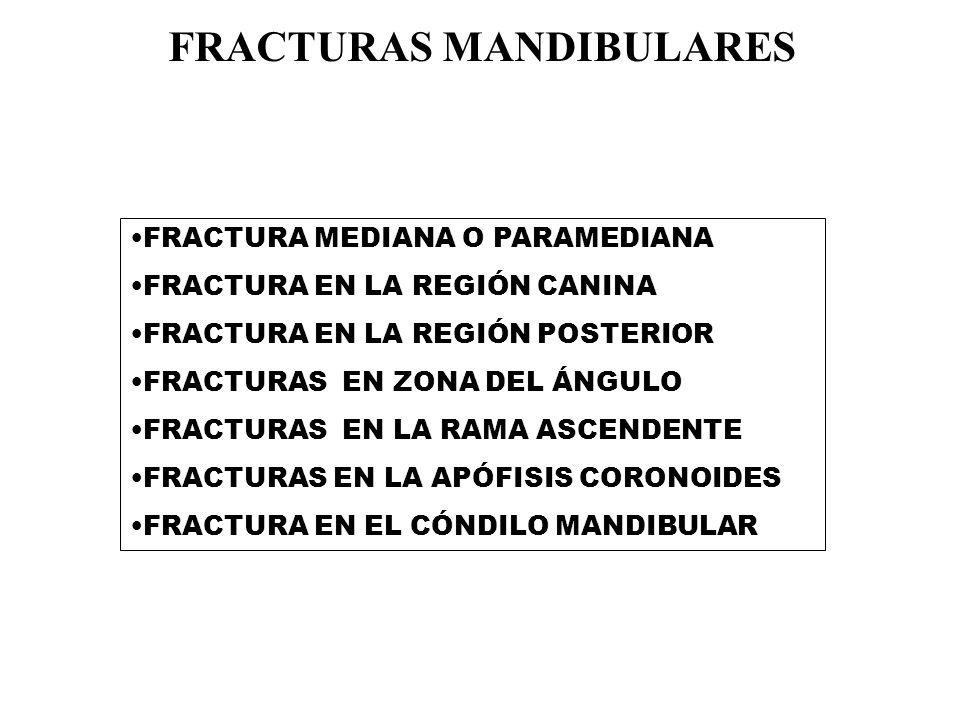 FRACTURA MEDIANA O PARAMEDIANA FRACTURA EN LA REGIÓN CANINA FRACTURA EN LA REGIÓN POSTERIOR FRACTURAS EN ZONA DEL ÁNGULO FRACTURAS EN LA RAMA ASCENDENTE FRACTURAS EN LA APÓFISIS CORONOIDES FRACTURA EN EL CÓNDILO MANDIBULAR FRACTURAS MANDIBULARES