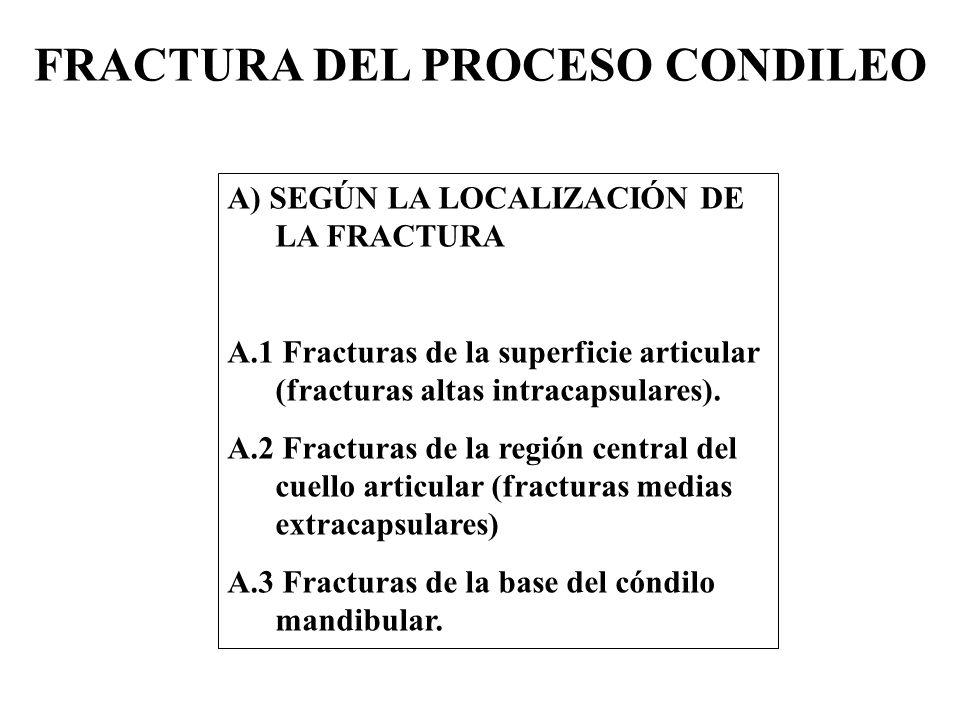 FRACTURA DEL PROCESO CONDILEO A) SEGÚN LA LOCALIZACIÓN DE LA FRACTURA A.1 Fracturas de la superficie articular (fracturas altas intracapsulares).