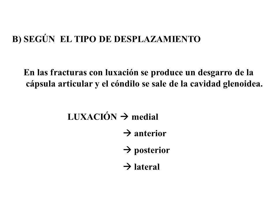 B) SEGÚN EL TIPO DE DESPLAZAMIENTO En las fracturas con luxación se produce un desgarro de la cápsula articular y el cóndilo se sale de la cavidad glenoidea.