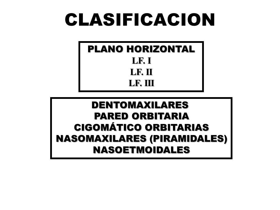 CLASIFICACION PLANO HORIZONTAL LF.I LF. II LF.