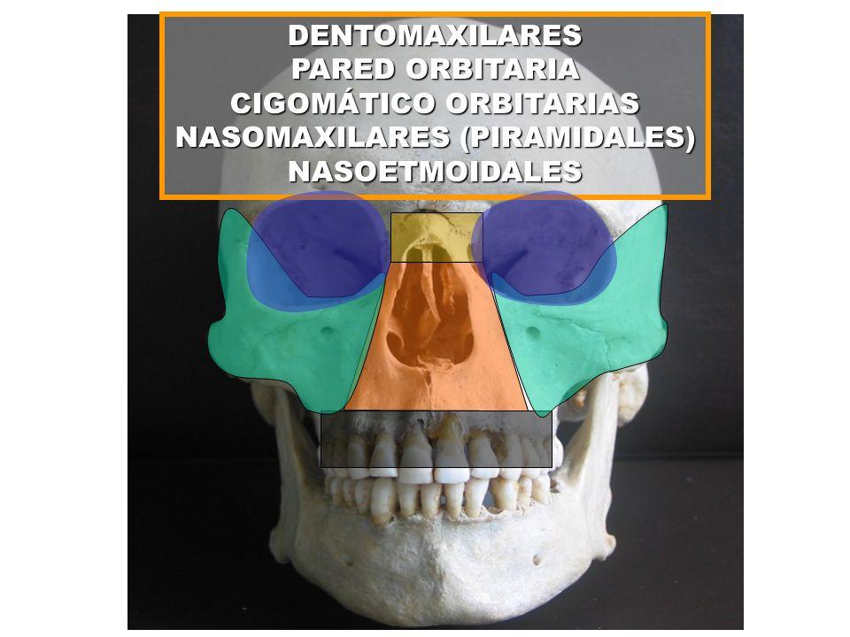 DENTOMAXILARES PARED ORBITARIA CIGOMÁTICO ORBITARIAS NASOMAXILARES (PIRAMIDALES) NASOETMOIDALES