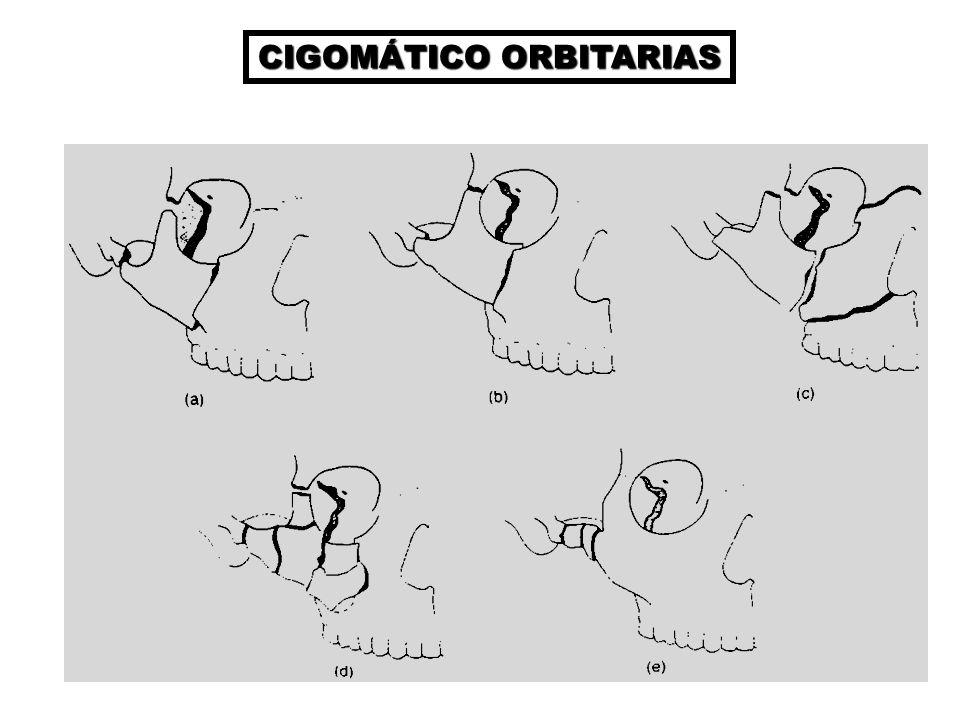 CIGOMÁTICO ORBITARIAS