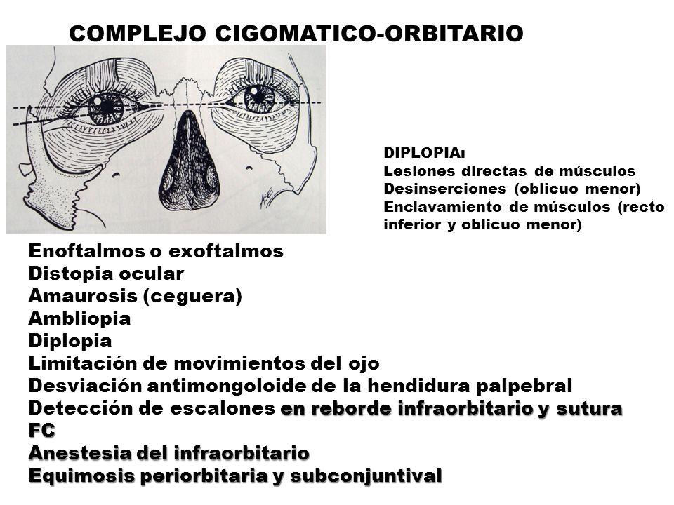 COMPLEJO CIGOMATICO-ORBITARIO Enoftalmos o exoftalmos Distopia ocular Amaurosis (ceguera) AmbliopiaDiplopia Limitación de movimientos del ojo Desviación antimongoloide de la hendidura palpebral Detección de escalones en reborde infraorbitario y sutura FC Anestesia del infraorbitario Equimosis periorbitaria y subconjuntival DIPLOPIA: Lesiones directas de músculos Desinserciones (oblicuo menor) Enclavamiento de músculos (recto inferior y oblicuo menor)