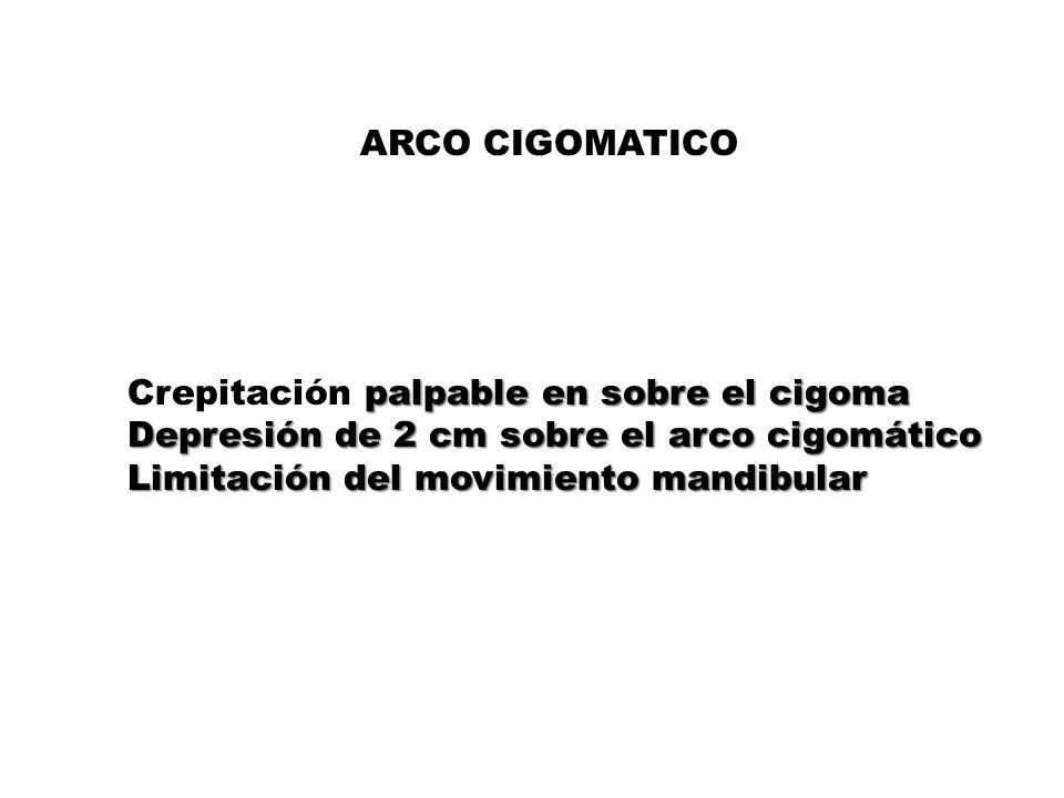 ARCO CIGOMATICO Crepitación palpable en sobre el cigoma Depresión de 2 cm sobre el arco cigomático Limitación del movimiento mandibular