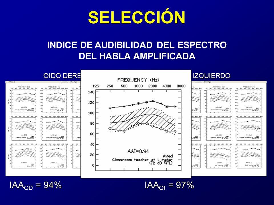 SELECCIÓN OIDO DERECHO OIDO IZQUIERDO IAA = 94% IAA OD = 94% IAA = 97% IAA OI = 97% INDICE DE AUDIBILIDAD DEL ESPECTRO DEL HABLA AMPLIFICADA