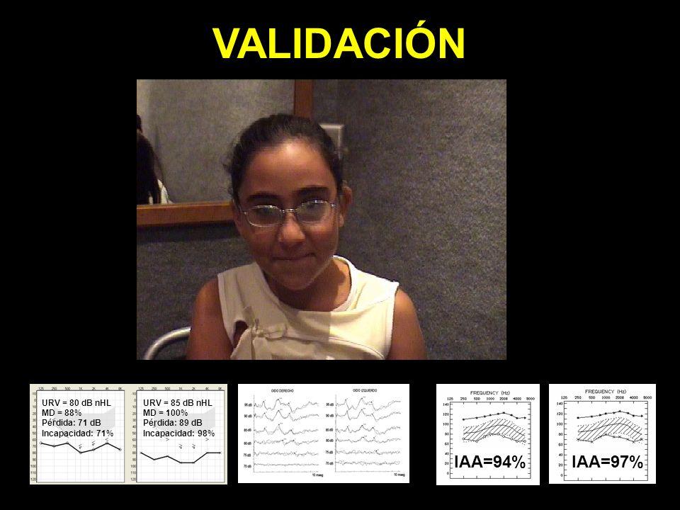 VALIDACIÓN IAA=62% IAA=94%IAA=97% URV = 80 dB nHL MD = 88% Pérdida: 71 dB Incapacidad: 71% URV = 85 dB nHL MD = 100% Pérdida: 89 dB Incapacidad: 98%