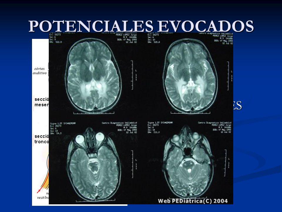 POTENCIALES EVOCADOS N400 N400 P300 P300 MMN MMN CORTICALES CORTICALES PEAee PEAee 40 Hz 40 Hz MEDIOS MEDIOS PEATC PEATC ECOGH ECOGH X