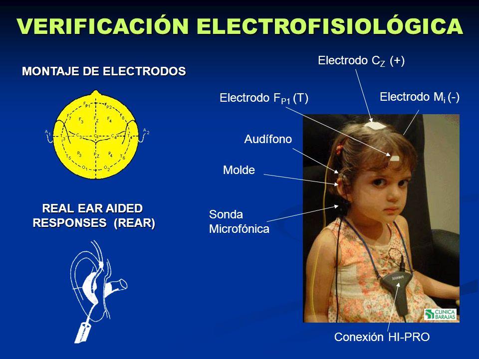 Audífono Electrodo C Z (+) Conexión HI-PRO Sonda Microfónica Electrodo F P1 (T) Electrodo M i (-) Molde MONTAJE DE ELECTRODOS REAL EAR AIDED RESPONSES