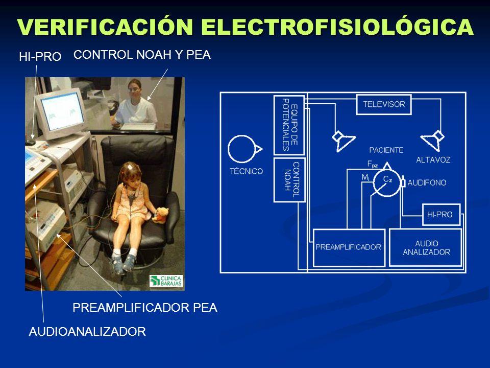 PREAMPLIFICADOR PEA AUDIOANALIZADOR HI-PRO CONTROL NOAH Y PEA VERIFICACIÓN ELECTROFISIOLÓGICA