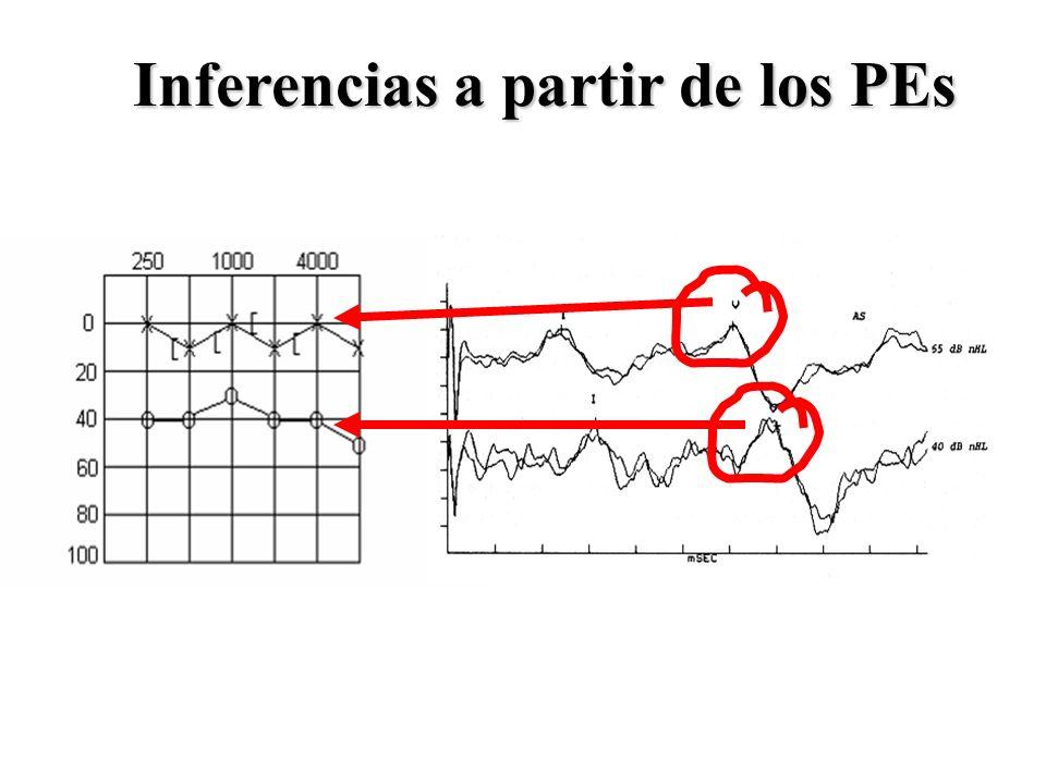 Sonoridad Reclutamiento Moore et al.