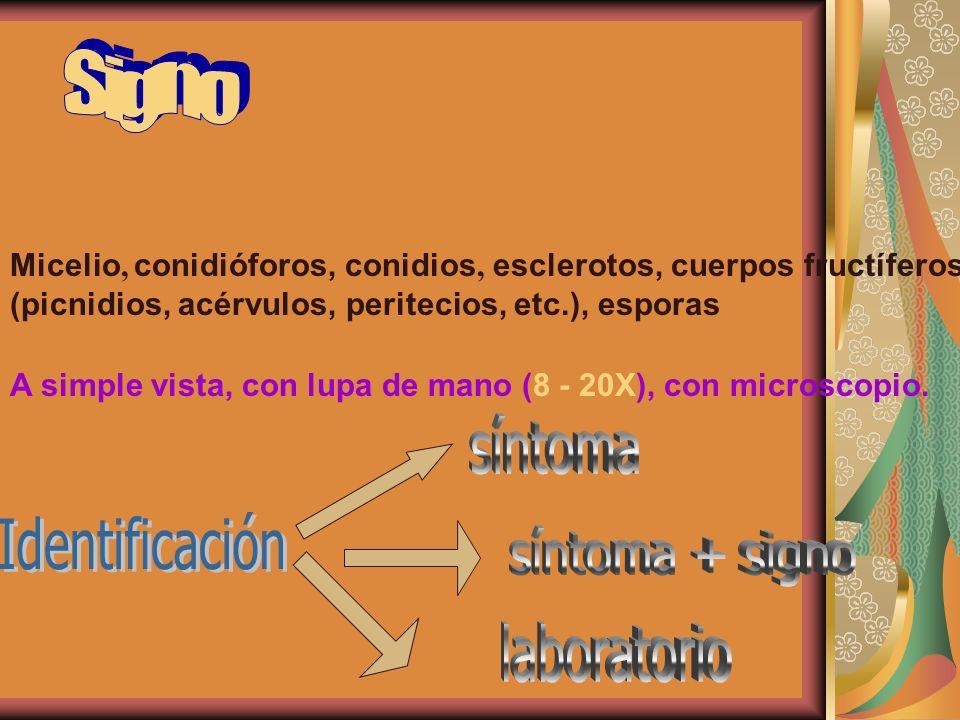 Micelio, conidióforos, conidios, esclerotos, cuerpos fructíferos (picnidios, acérvulos, peritecios, etc.), esporas A simple vista, con lupa de mano (8