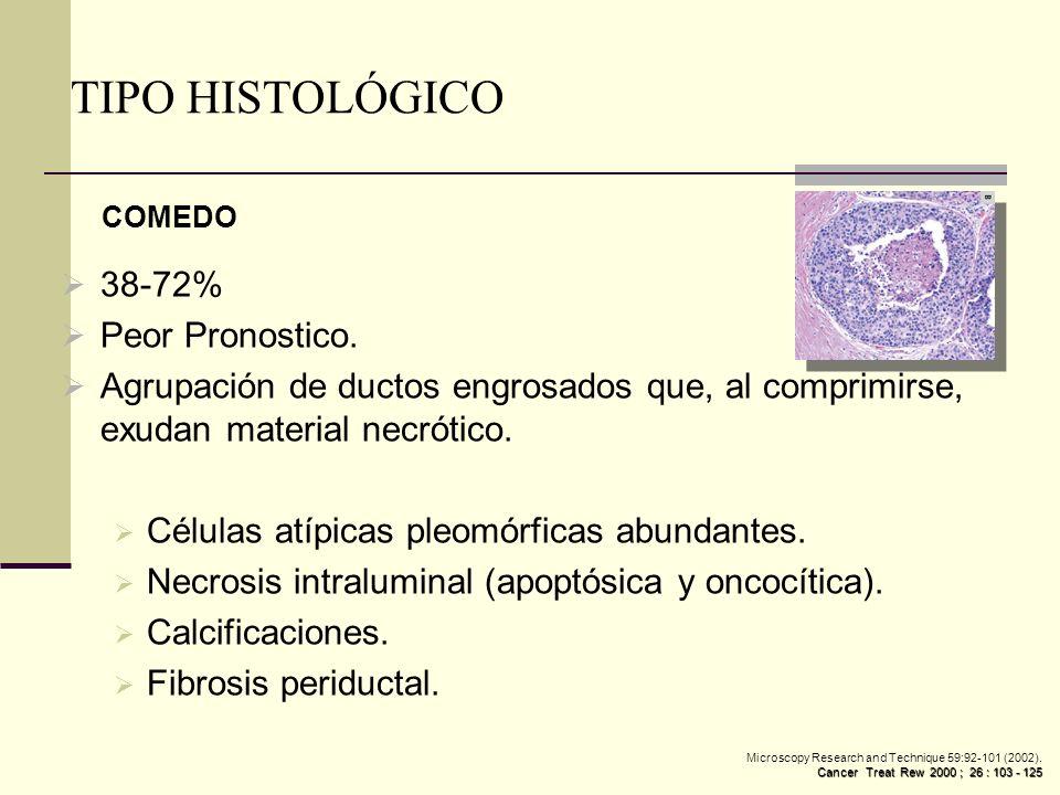 TIPO HISTOLÓGICO 38-72% Peor Pronostico. Agrupación de ductos engrosados que, al comprimirse, exudan material necrótico. Células atípicas pleomórficas