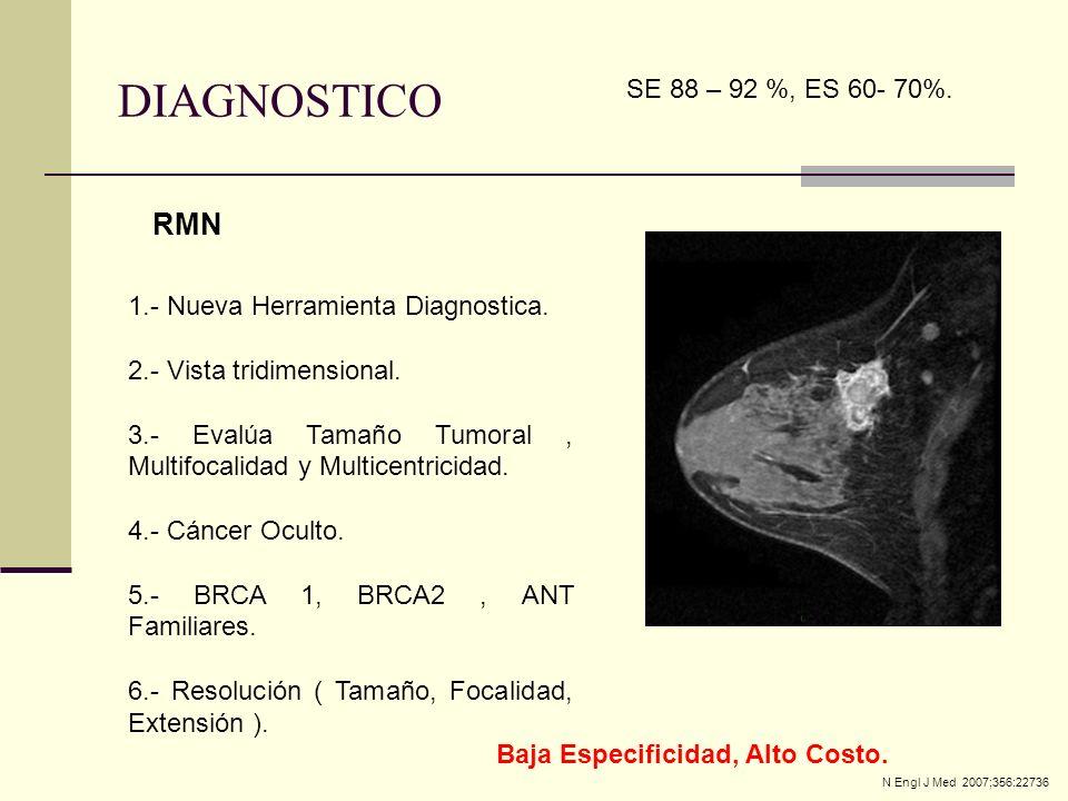 RMN 1.- Nueva Herramienta Diagnostica. 2.- Vista tridimensional. 3.- Evalúa Tamaño Tumoral, Multifocalidad y Multicentricidad. 4.- Cáncer Oculto. 5.-