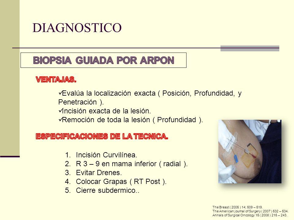 Evalúa la localización exacta ( Posición, Profundidad, y Penetración ). Incisión exacta de la lesión. Remoción de toda la lesión ( Profundidad ). 1.In
