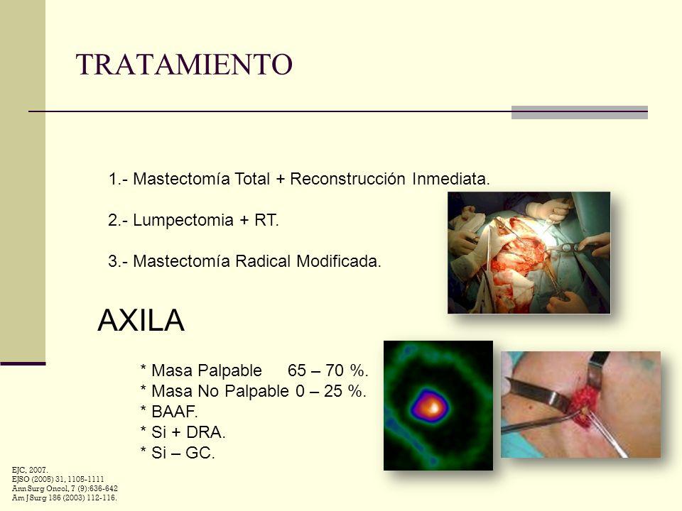 TRATAMIENTO 1.- Mastectomía Total + Reconstrucción Inmediata. 2.- Lumpectomia + RT. 3.- Mastectomía Radical Modificada. AXILA * Masa Palpable 65 – 70