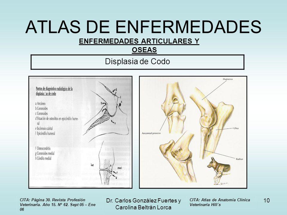 Dr. Carlos González Fuertes y Carolina Beltrán Lorca 10 ATLAS DE ENFERMEDADES ENFERMEDADES ARTICULARES Y OSEAS Displasia de Codo CITA: Atlas de Anatom