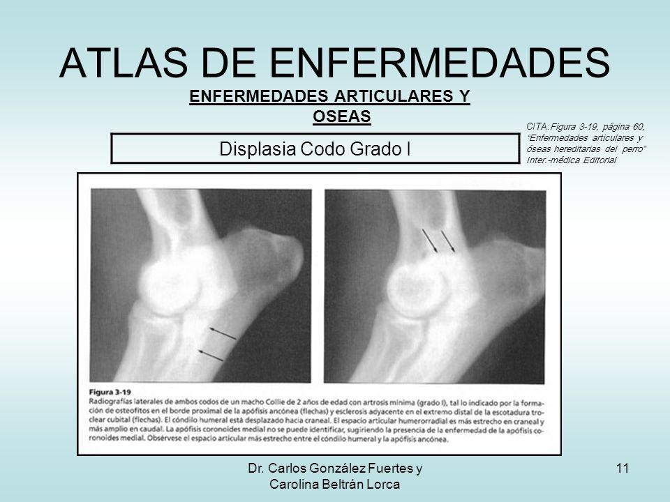 Dr. Carlos González Fuertes y Carolina Beltrán Lorca 11 ATLAS DE ENFERMEDADES ENFERMEDADES ARTICULARES Y OSEAS Displasia Codo Grado I CITA: Figura 3-1