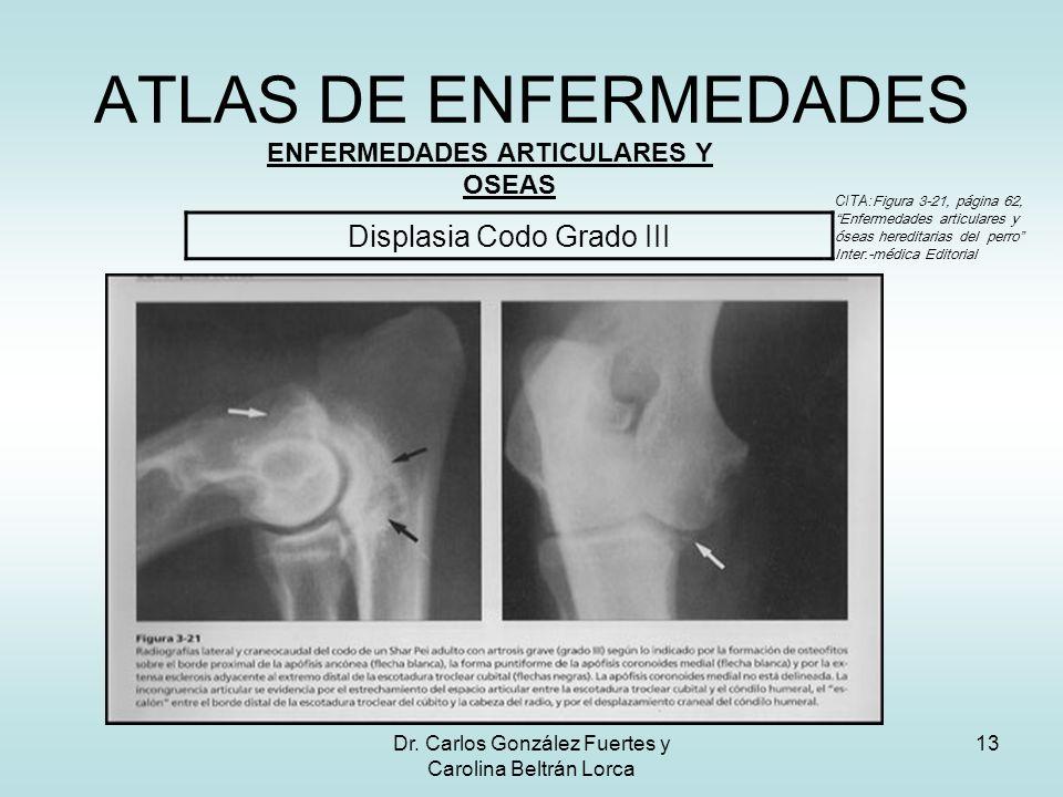 Dr. Carlos González Fuertes y Carolina Beltrán Lorca 13 ATLAS DE ENFERMEDADES ENFERMEDADES ARTICULARES Y OSEAS Displasia Codo Grado III CITA: Figura 3