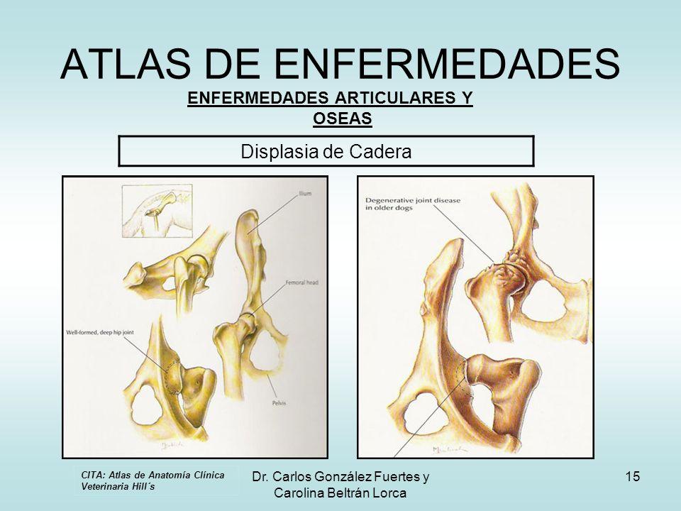 Dr. Carlos González Fuertes y Carolina Beltrán Lorca 15 ATLAS DE ENFERMEDADES ENFERMEDADES ARTICULARES Y OSEAS Displasia de Cadera CITA: Atlas de Anat