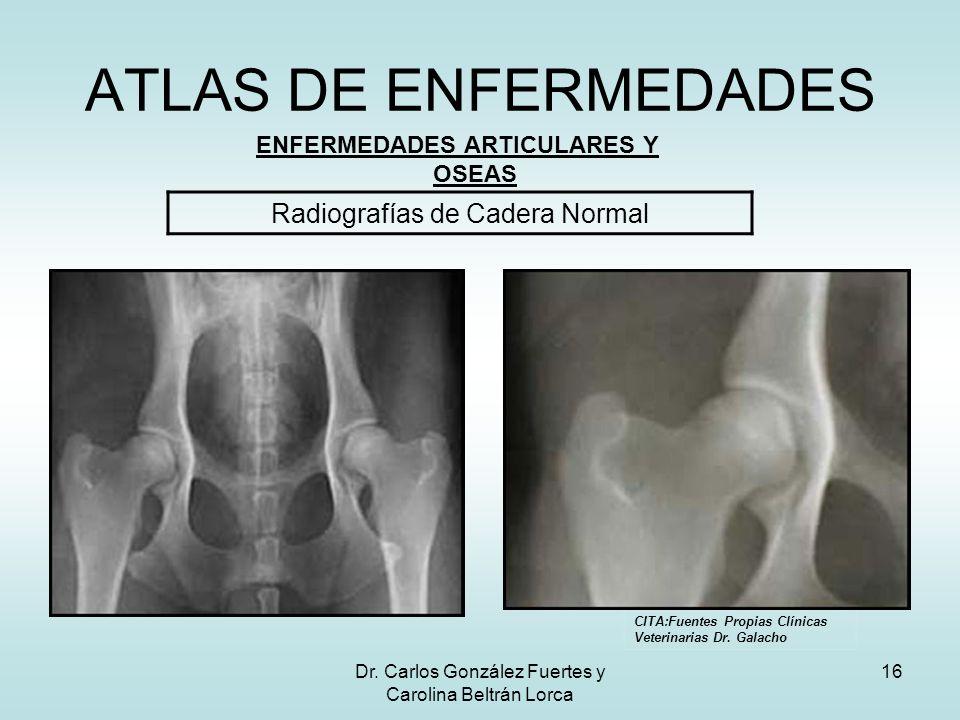 Dr. Carlos González Fuertes y Carolina Beltrán Lorca 16 ATLAS DE ENFERMEDADES ENFERMEDADES ARTICULARES Y OSEAS Radiografías de Cadera Normal CITA:Fuen