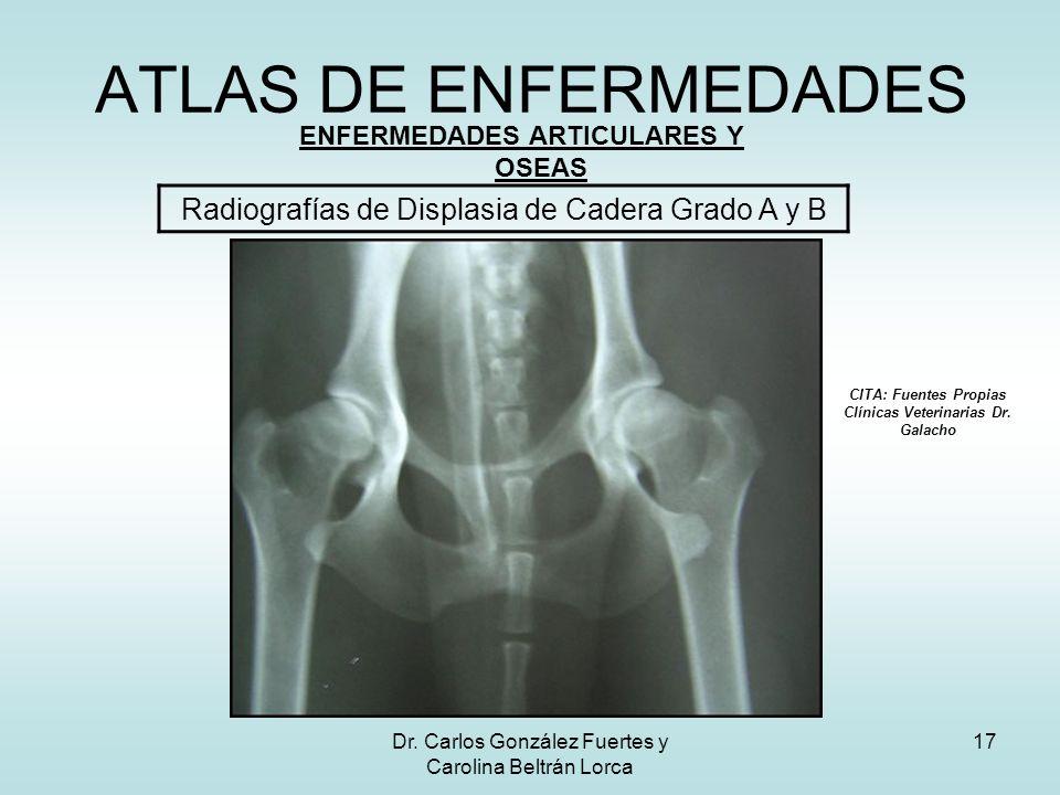 Dr. Carlos González Fuertes y Carolina Beltrán Lorca 17 ATLAS DE ENFERMEDADES ENFERMEDADES ARTICULARES Y OSEAS Radiografías de Displasia de Cadera Gra