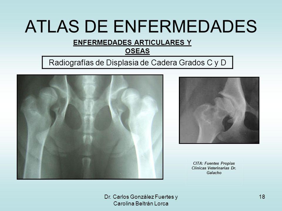 Dr. Carlos González Fuertes y Carolina Beltrán Lorca 18 ATLAS DE ENFERMEDADES ENFERMEDADES ARTICULARES Y OSEAS Radiografías de Displasia de Cadera Gra